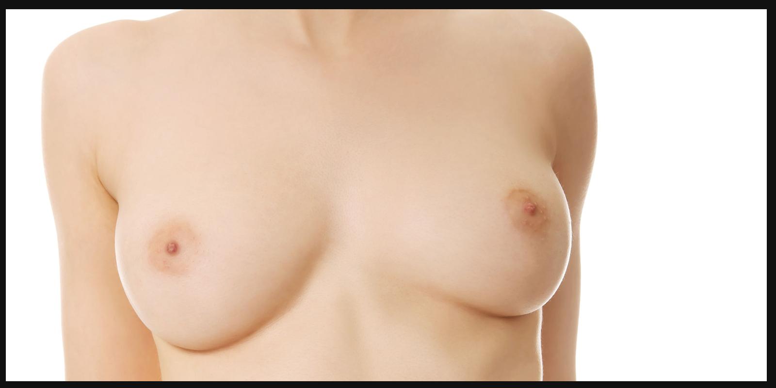 augmentation mammaire prothèses