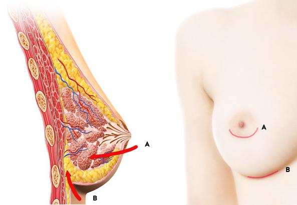 incision prothèse mammaire