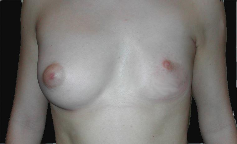 malformation sein implant mammaire