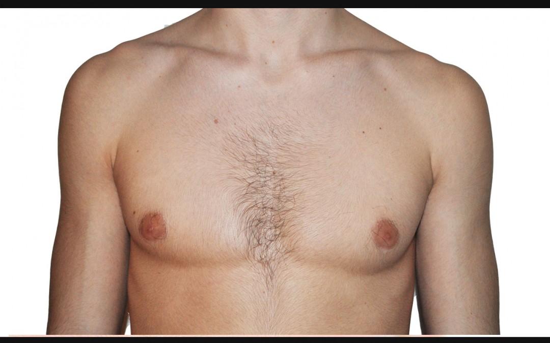 Peut-on réaliser une opération d'une gynécomastie dans le même temps qui lipoaspiration des hanches et de l'abdomen?
