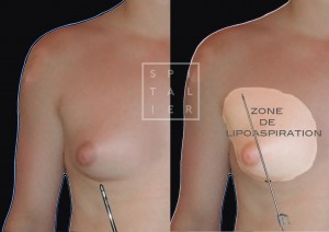 gynécomastie annecy esthétique savoie glande mammaire chez l'homme chirurgie par lipoaspiration