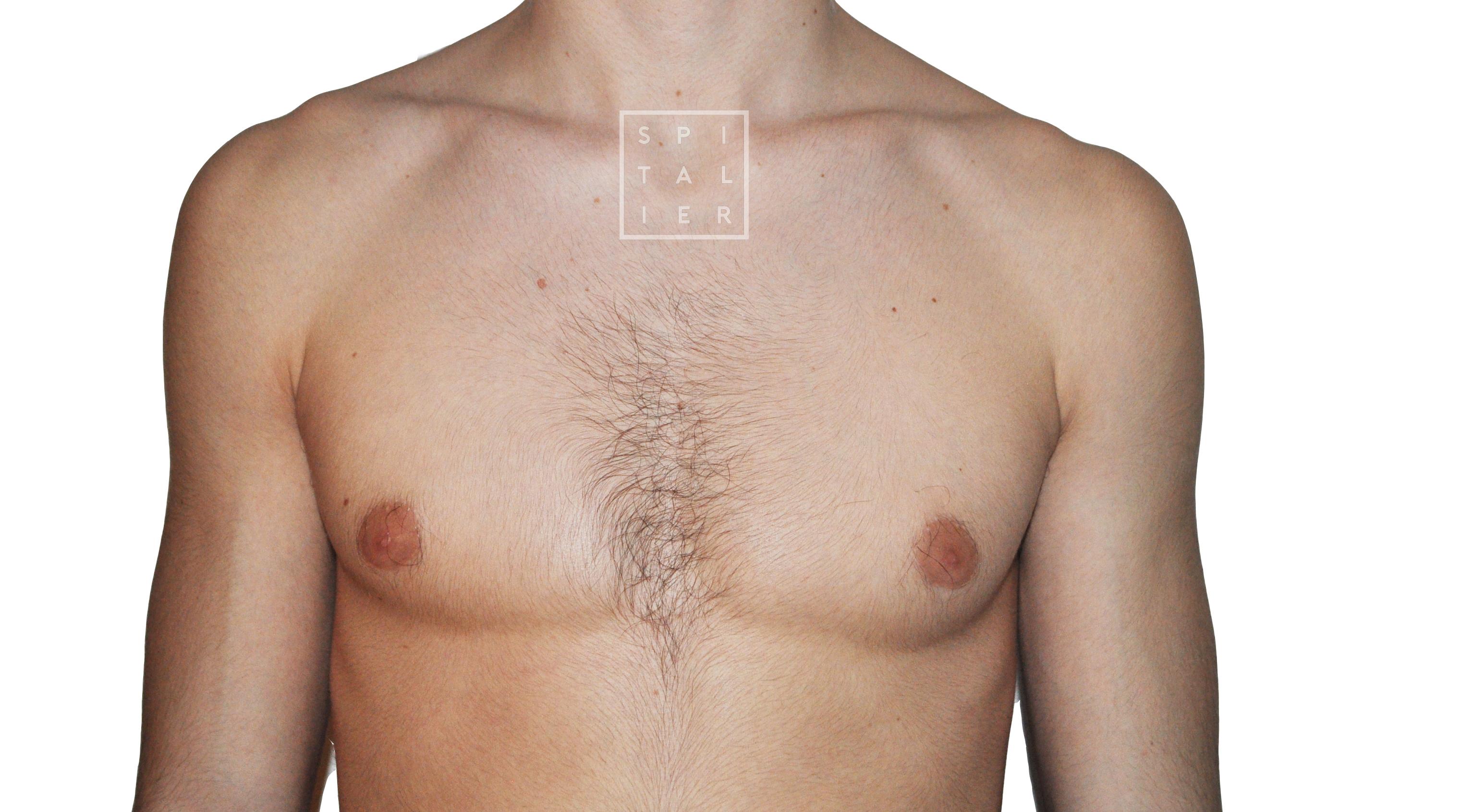 gynecomastie image
