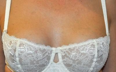 A partir de quelle age peut on bénéficier d'une augmentation mammaire?