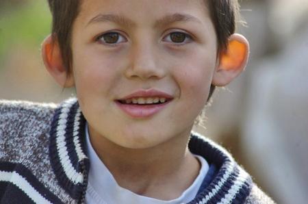 oreille décollée enfant chirurgie esthétique
