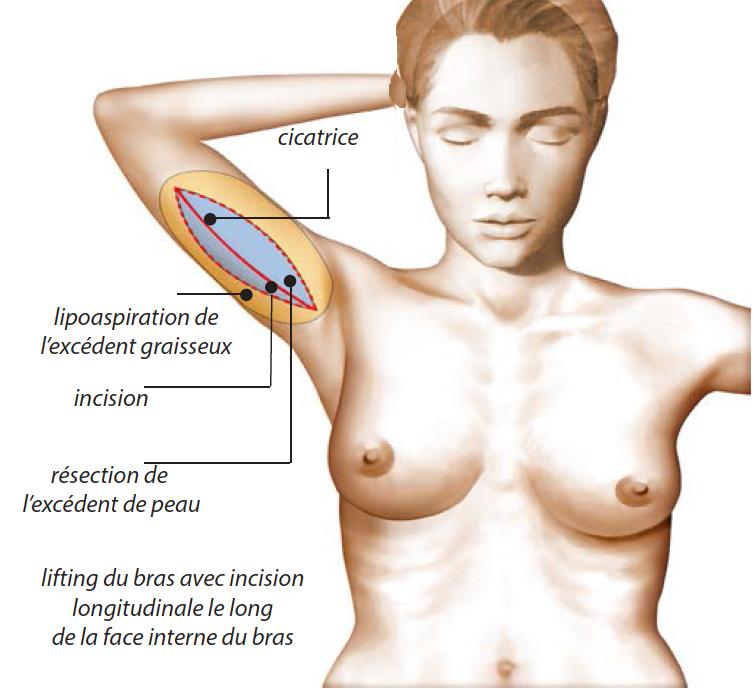 lifting lipoaspiration du bras