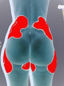 lipoaspiration photo docteur spitalier annecy