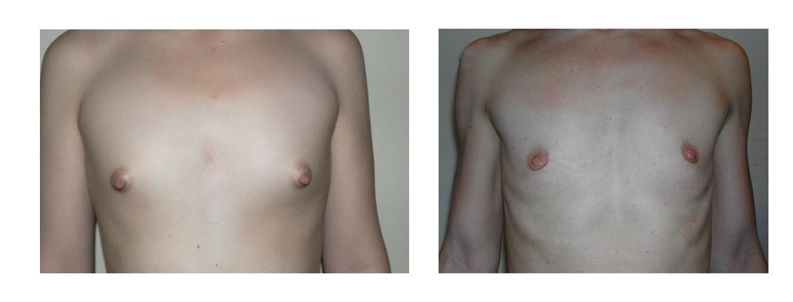 agénésie mammaire patiente docteur spitalier annecy