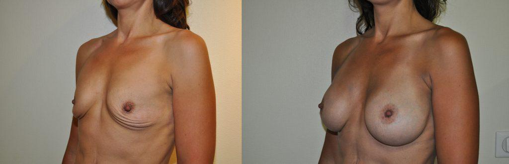 implant anatomique spitalier annecy