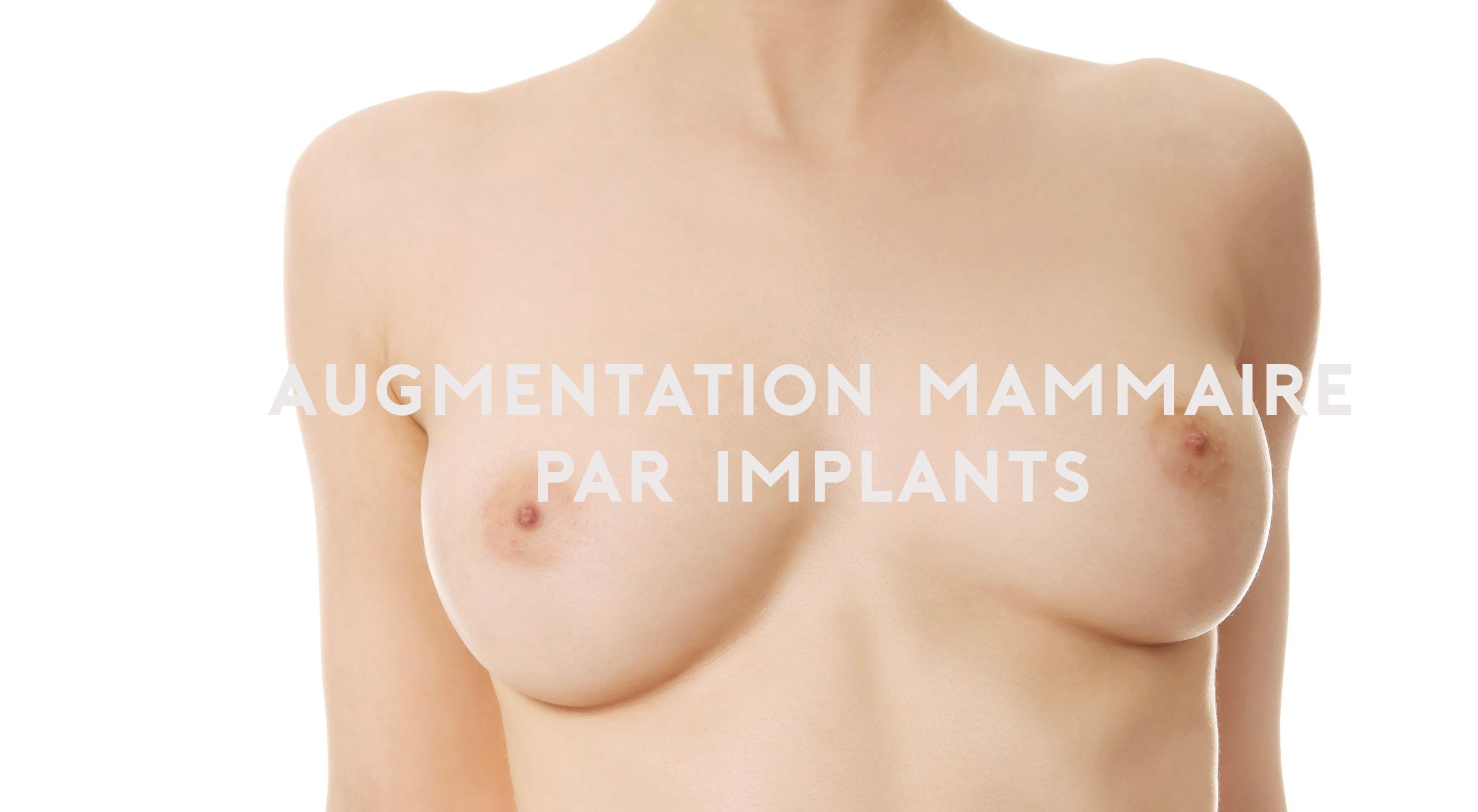 prothèses mammaires sein augmentation haute savoie