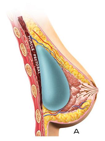 prothes implant mammaire prépectoral