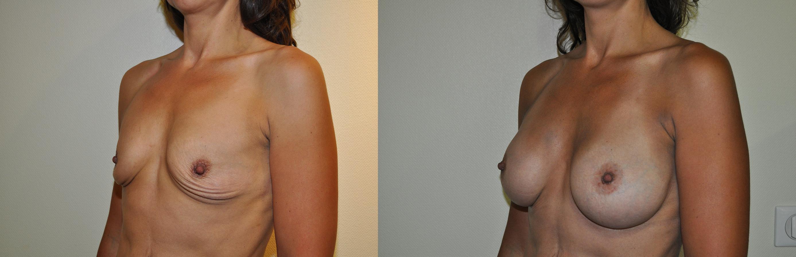 augmentation mammaire dual plane avant après