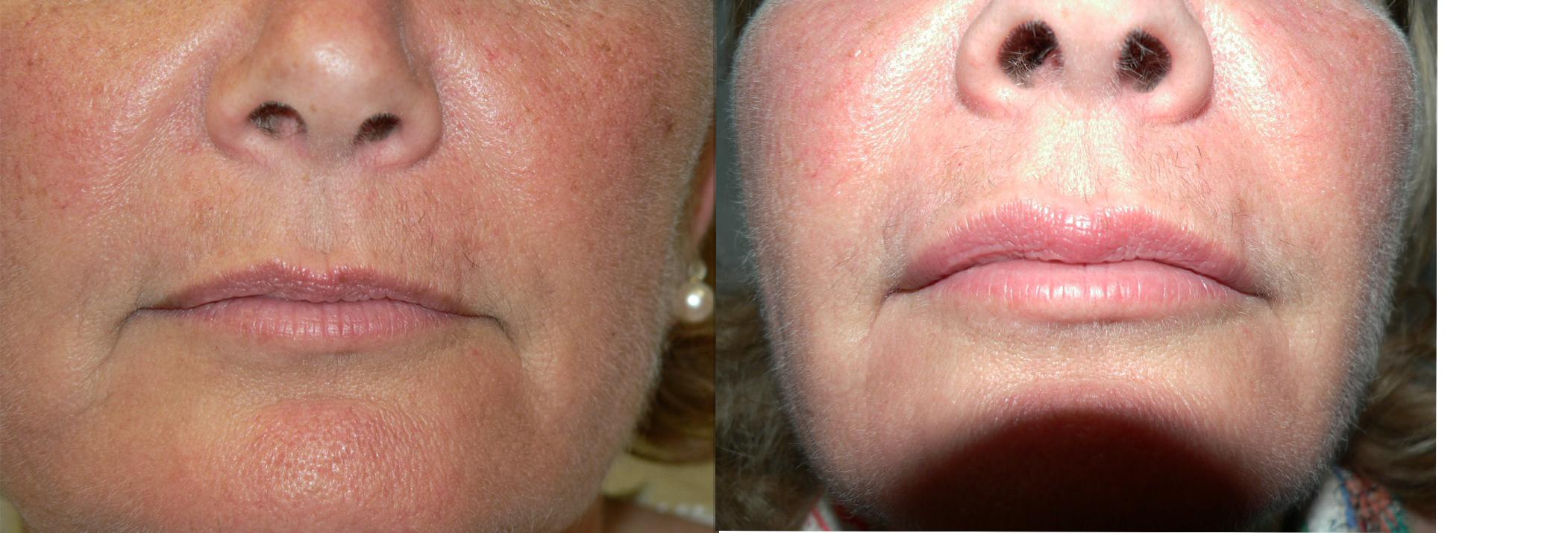 augmentation lèvres avant après