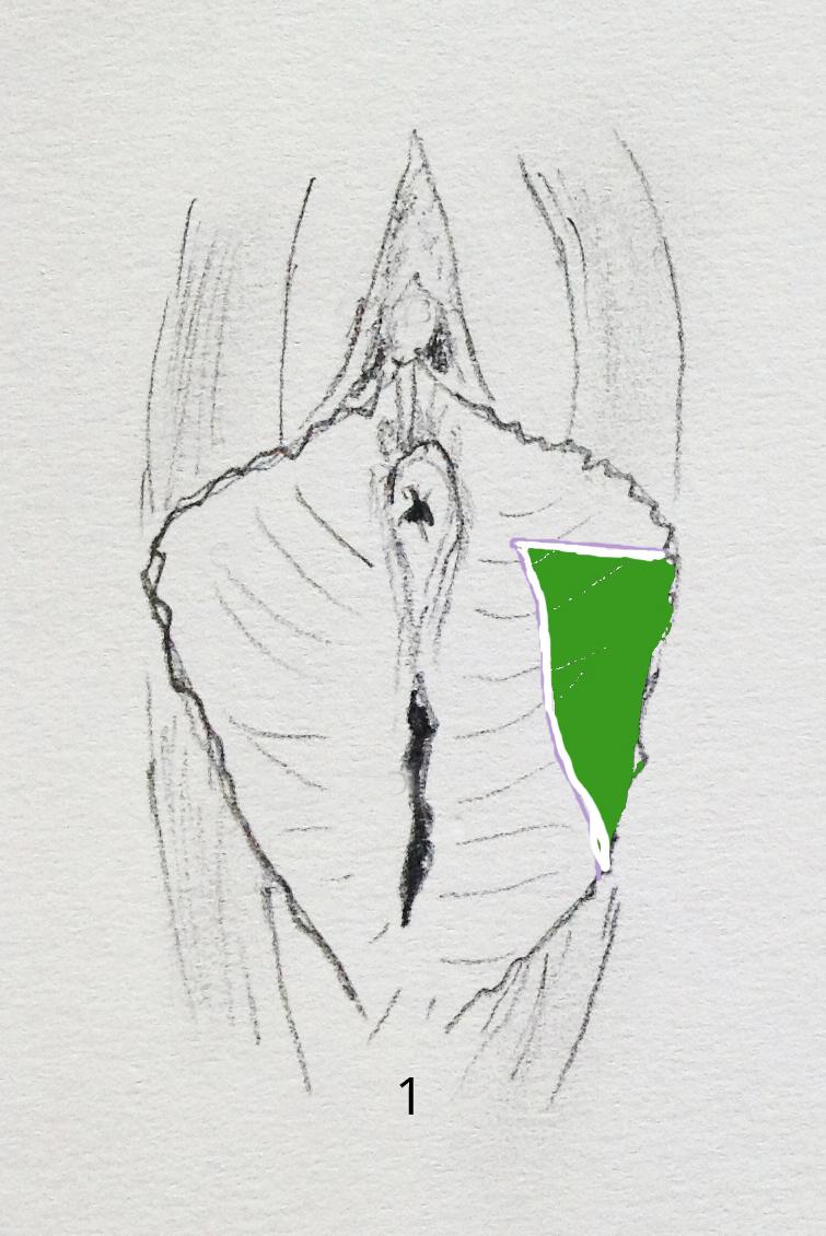 chirurgie de l'intimité annecy Genève