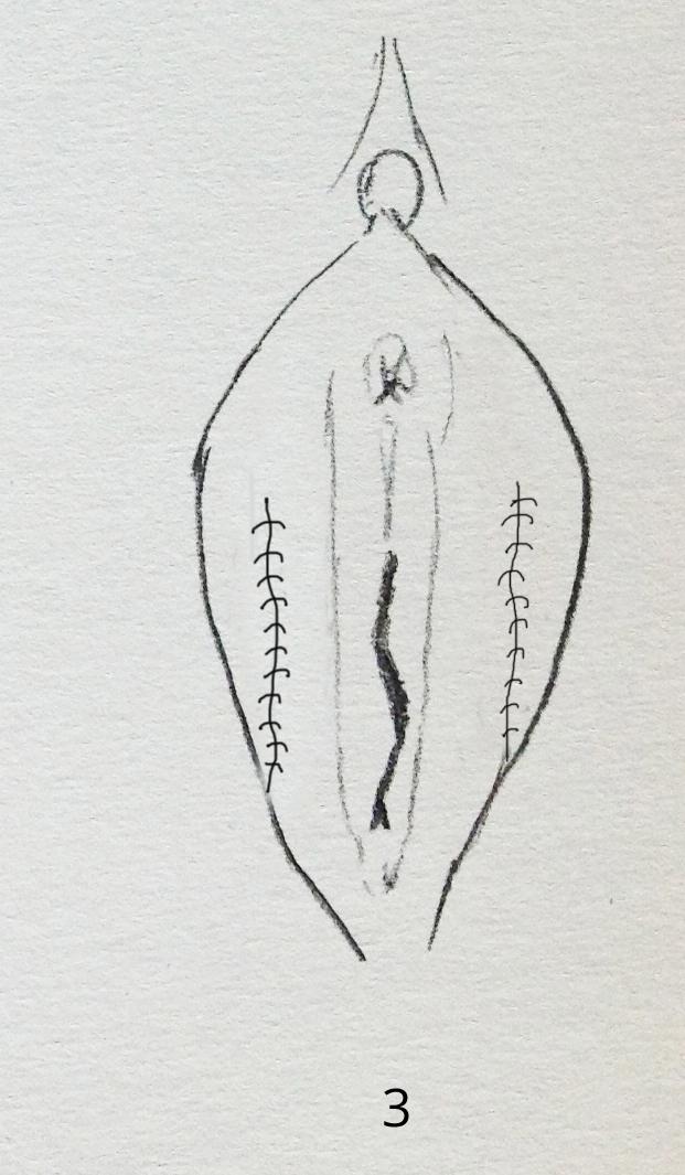 chirurgie esthétique du sexe femme