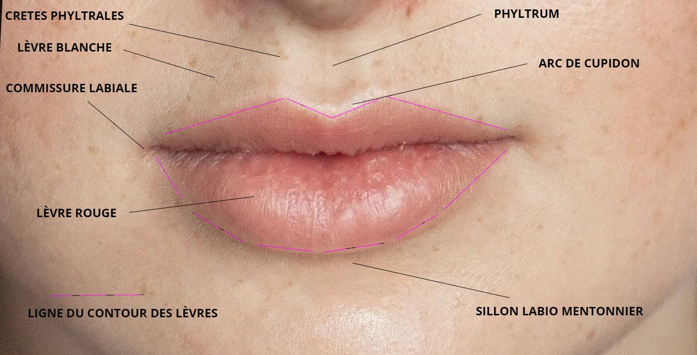 augmentation lèvres russe annecy savoie