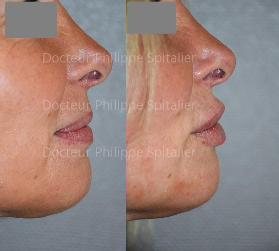 augmentation lèvres avant après annecy